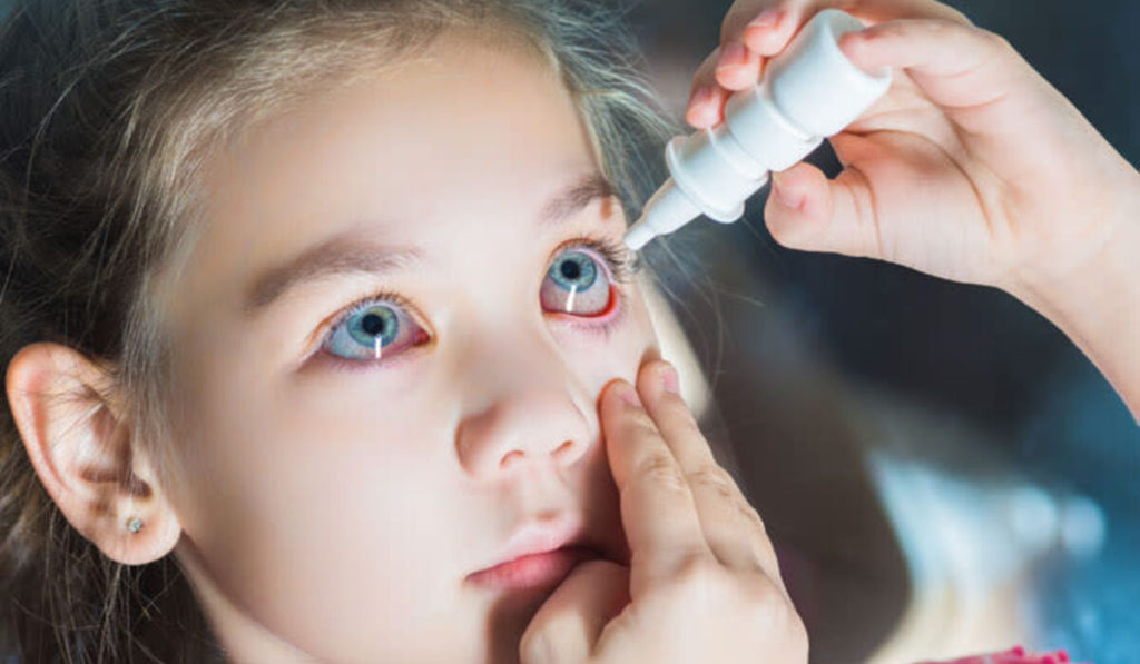 كيف وضع قطرة العينين للأطفال؟