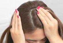 كيفية علاج قشرة الشعر: 4 وصفات منزلية للتخلص من أكثر المشكلات المزعجة