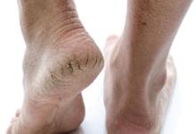 كيفية علاج تشقق القدمين بـ 5 وصفات منزلية