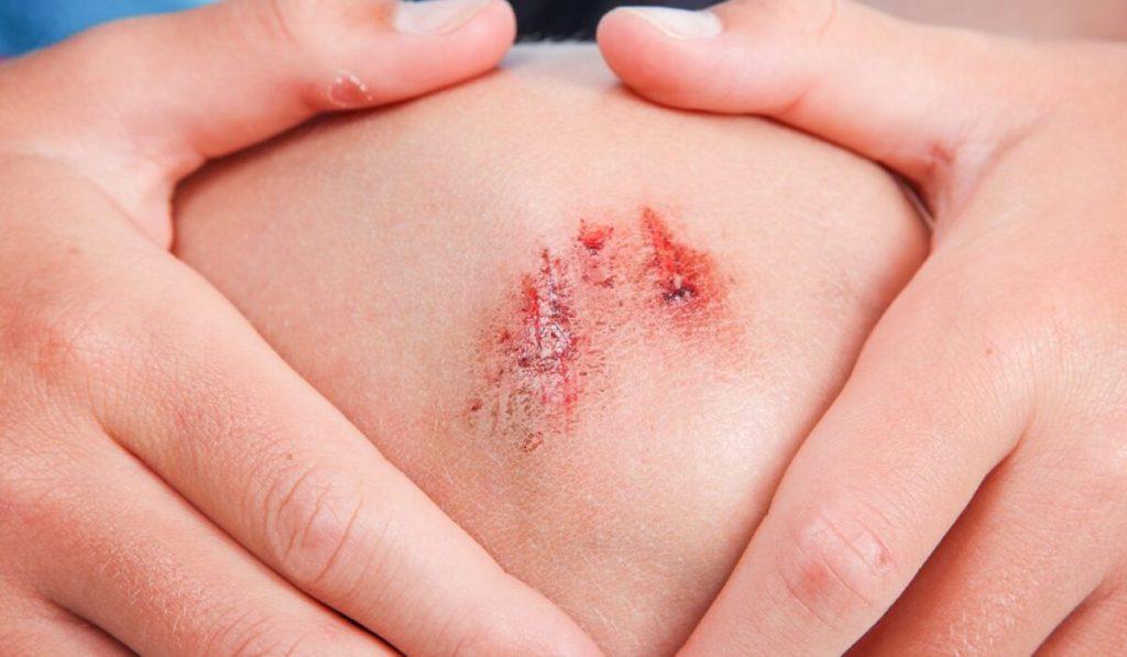 طرق علاج الجروح المختلفة بالمنزل