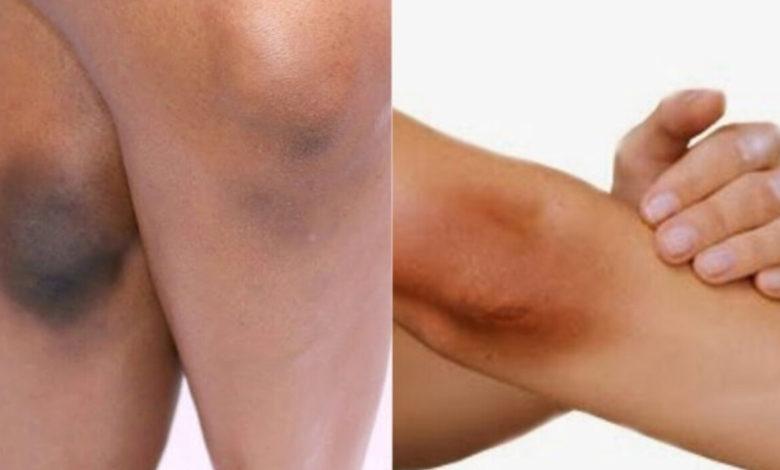 كيفية التخلص من سواد الركبة: أهم 15 وصفة طبيعية أمنة لتبيضها في المنزل