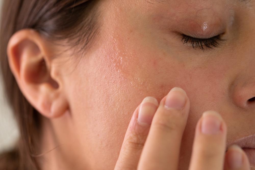 العوامل المؤثرة على جفاف الوجه