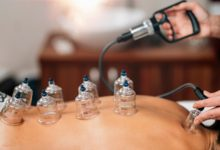 Cupping Therapy - Traditional Chinese Medicine